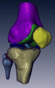 FEA Knee Model